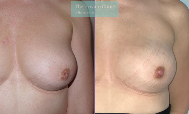 inverted nipple before after photo pictures Miles Berry 007MB