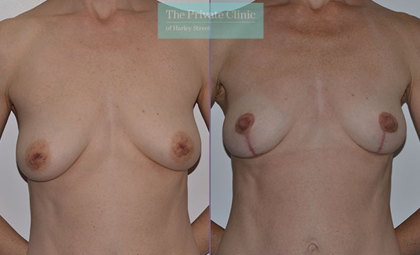 inverted nipple correction areola reduction before after results front mr adrian richards 036AR