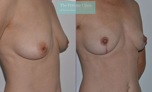 inverted nipple correction areola reduction before after results side mr adrian richards 036AR