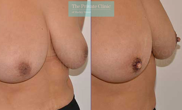 inverted nipple surgery before after photo uk results adrian richards 034AR