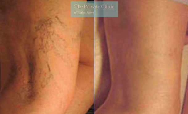 legs thread veins spider london before after photo results 024TPC