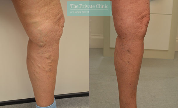 legs varicose veins removal leeds evla laser treatment before after photos mr tahir hussain 002TH