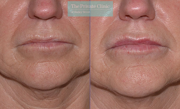 lip filler dermal fillers before after results photos uk mel recchia 007MR