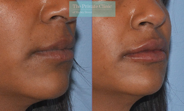 lip fillers before after photos results mel recchia 008MR