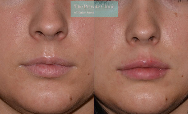 lip fillers natural before after results photos mel recchia 002MR