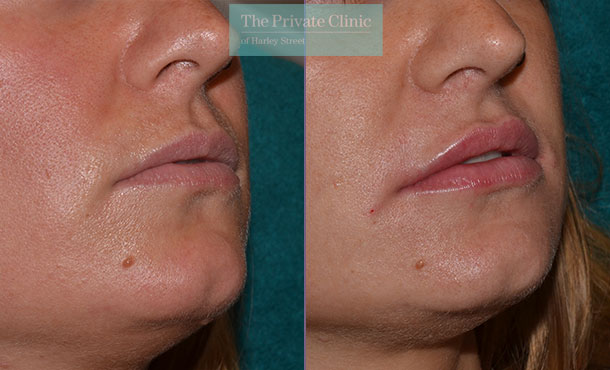 lip fillers natural looking before after photos mel recchia 006MR
