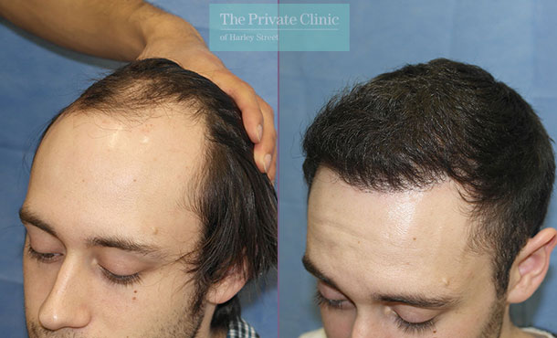 london clinic fue hair transplantation before after photos results dr raghu reddy side 086RR