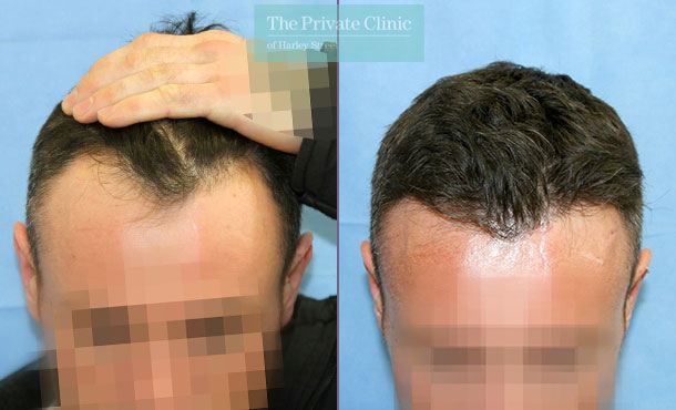 london harley street fue hair transplant before after photos results dr raghu reddy 123RR