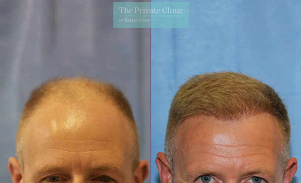 london harley street hair clinic fue hair transplant before after photos dr raghu reddy front 109RR