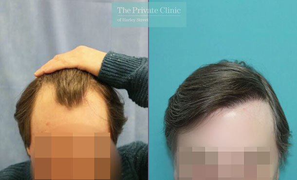 london uk fue hair transplant clinic before after photos results dr raghu reddy 131RR
