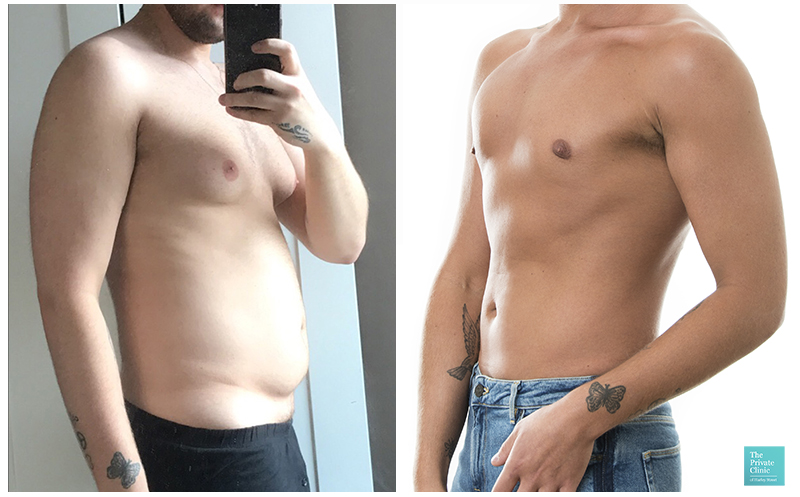 male breast liposuction gynaecomastia men moobs chest reduction before after photo