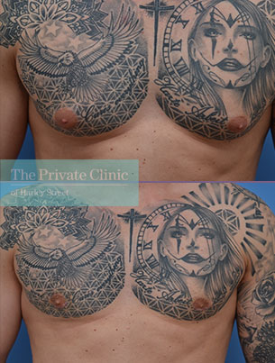 male chest reduction surgery exision before after results photos mr adel fattah the private clinic 002AF