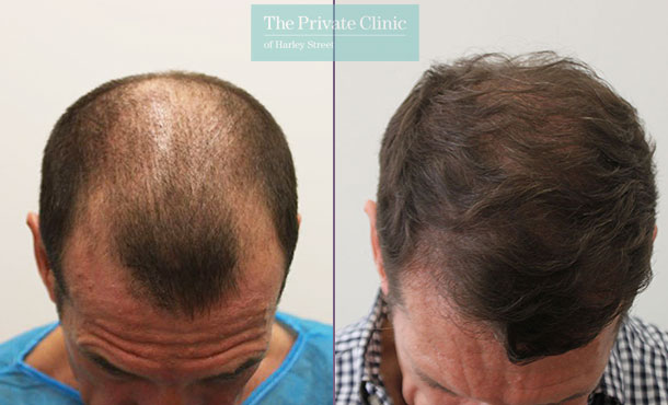 male fue hair transplant before after photos results dr raghu reddy crown 071RR