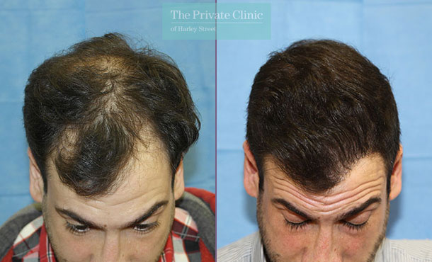 male fue hair transplant london before after results dr raghu reddy front 102RR