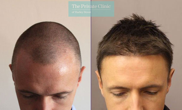 male hair transplant london before after photo results dr raghu reddy 038RR