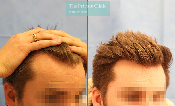male hair transplant london before after photo results dr raghu reddy 073RR