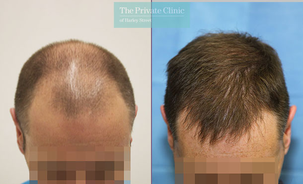 male hair transplant london before after photos results dr raghu reddy front 106RR