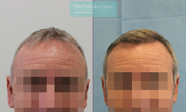 male hair transplant uk before after photo results dr raghu reddy front 085RR