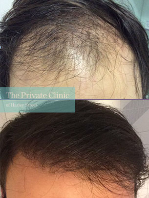 male hair transplant uk fue before after photo results dr luca de fazio 006LDF