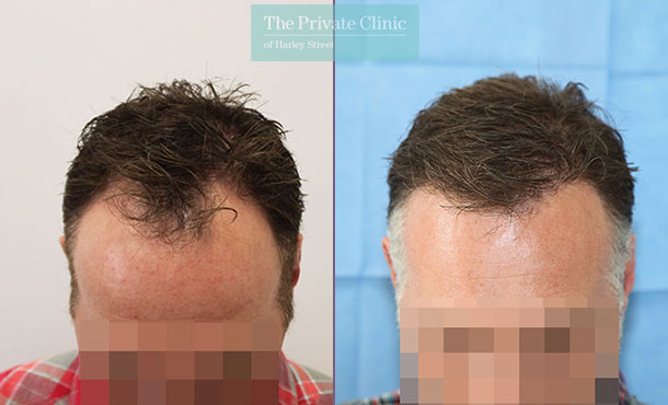 male hair transplant uk fue before after photos results dr raghu reddy 104RR