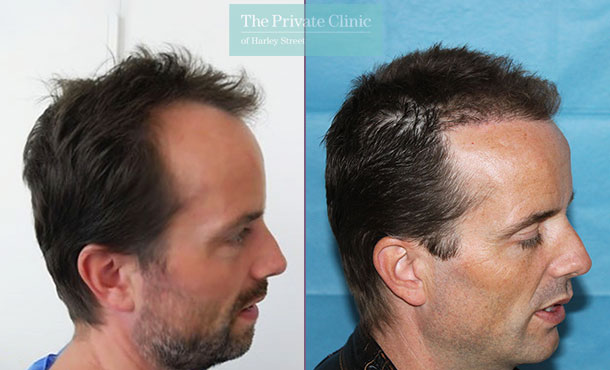 male hair transplant uk london before after photo results dr raghu reddy 022RR side