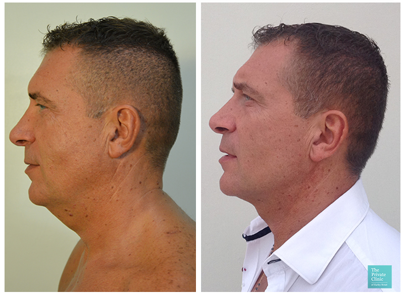 male liposuction double chin neck men before after photo