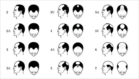 male pattern hairloss norwood scale hair transplant the private clinic