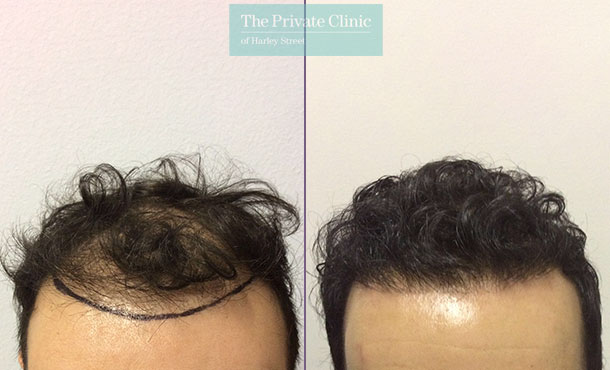 mens fue hair transplant before after photos results dr luca de fazio 008LDF