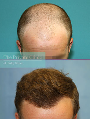 mens fue hair transplant london before after photos results dr raghu reddy 127RR