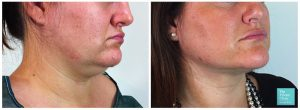 micro lipo liposuction neck jowls double chin removal before after photos results 300x110 1