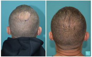 mike thurston hair transplant 6 months results crown transplant hair loss the private clinic 300x186 1