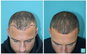 mike thurston hair transplant 6 months results hairline transplant hair loss the private clinic 300x186 1