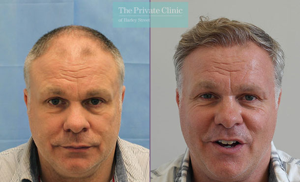minimally invasive hair restoration fue hair transplant before after photos dr raghu reddy front 088RR