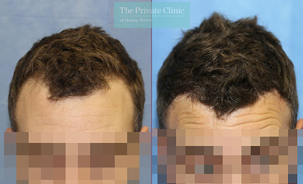 minimally invasive hair restoration hair transplant before after photo results dr raghu reddy 007RR front