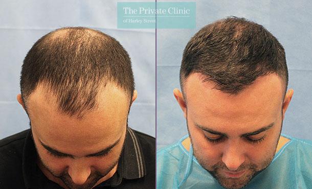 minimally invasive hair restoration hair transplant before after photos dr raghu reddy mid scalp 070RR