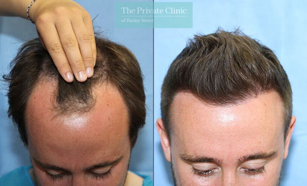 minimally invasive hair restoration hair transplant london before after photos results dr raghu reddy 116RR
