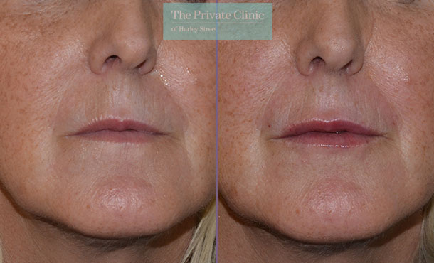 natural lip fillers before after photos uk mel recchia 004MR