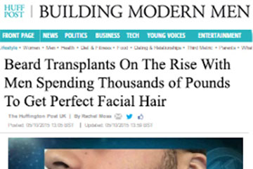 news beard transplants on the rise with men spending thousand of pounds to get perfect facial hair the private clinic