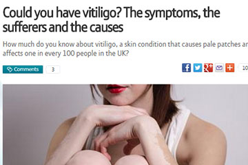 news could you have vitiligo the symptoms the sufferers and the causes the private clinic