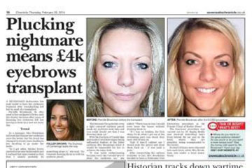 news plucking nightmare means 4k eyebrow transplant the private clinic