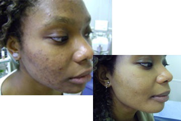 news result driven treatment acne the private clinic