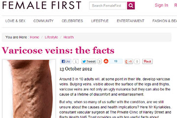 news varicose veins the facts the private clinic