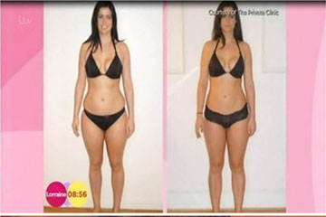 news vaser liposuction patient interview on ITVs Lorraine show the private clinic