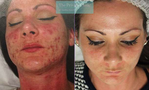 nlite laser acne treatment reviews before after results 018TPC