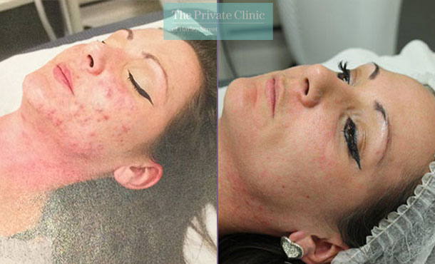 nlite laser acne treatment reviews before after results 022TPC