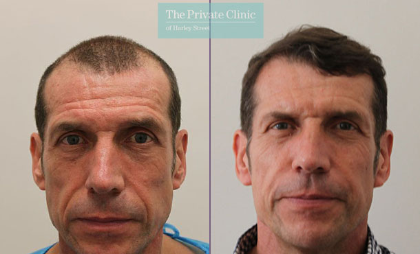 non invasive fue hair transplant london before after photos dr raghu reddy front 071RR