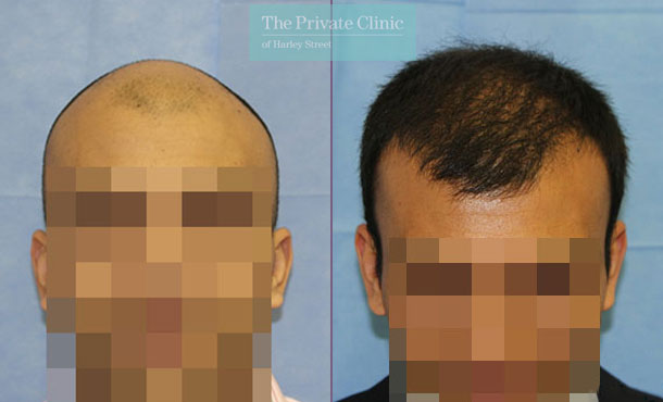 non invasive fue hair transplant london before after photos dr raghu reddy front 111RR