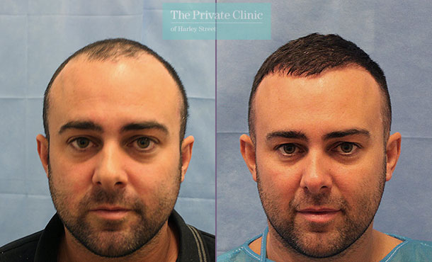 non invasive fue hair transplant london before after results dr raghu reddy front 070RR