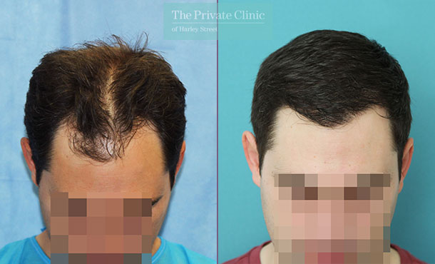 non surgical hair transplant before after photo london results dr raghu reddy front 129RR