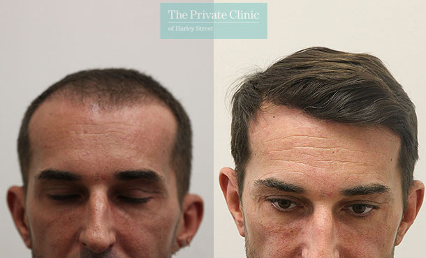 non surgical hair transplant london before after photos results dr raghu reddy 062RR